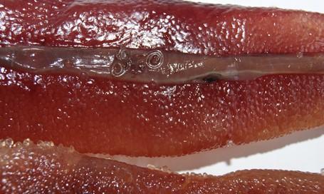 фото личинки нематоды